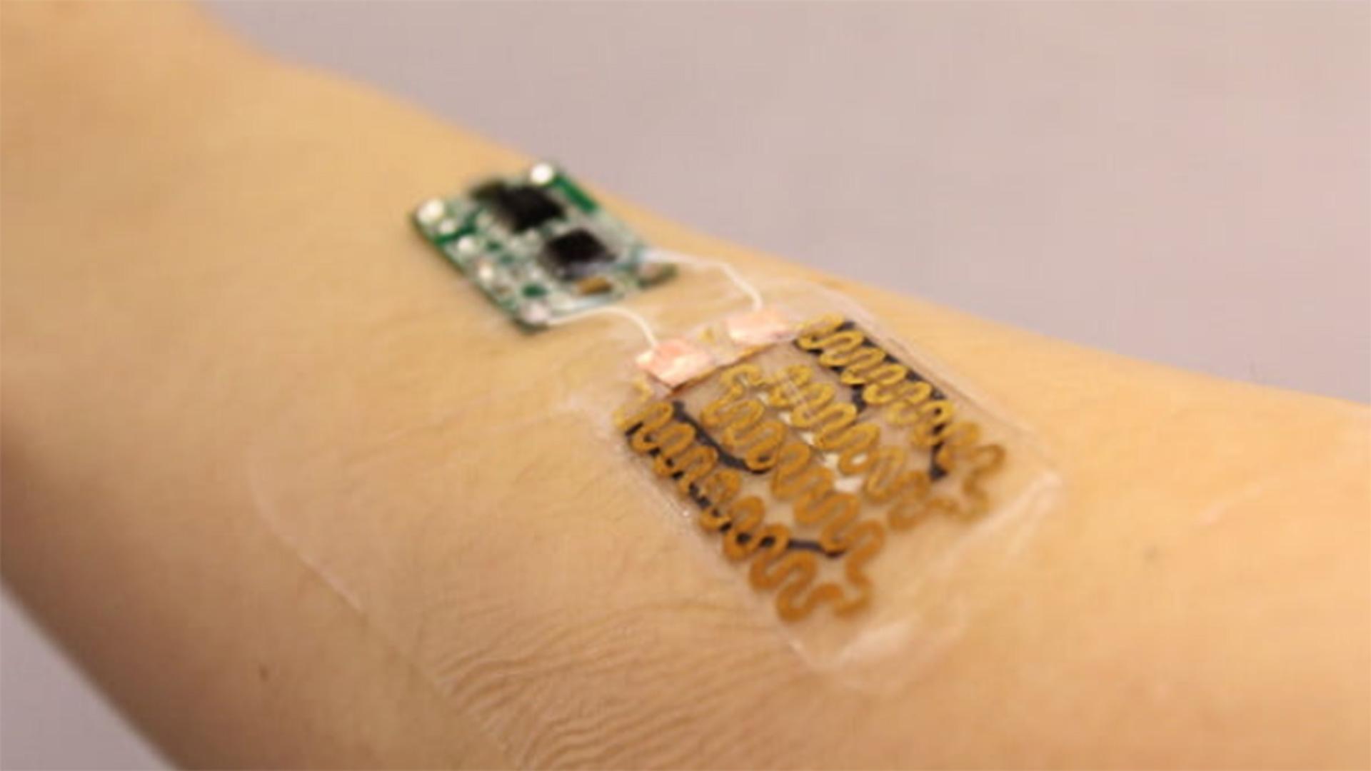 Este vendaje inteligente puede detectar infecciones y curarte al momento
