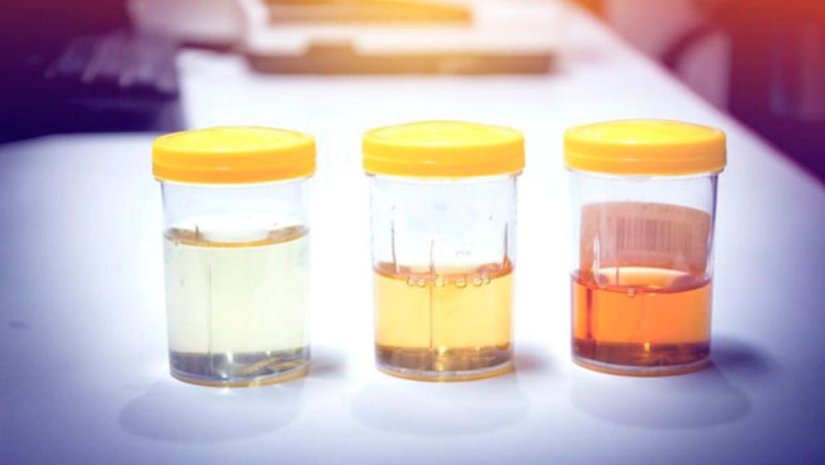Resultado de imagen de color del acido urico
