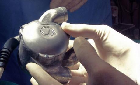 BIVACOR, un corazón biónico funcionará sin pulso en humanos