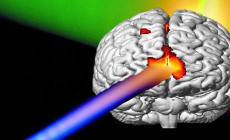 Laser cerebro