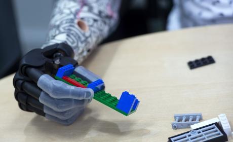 Un niño de 9 años, el paciente más joven con una mano biónica