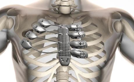 Implantan costillas impresas en 3D a un paciente español