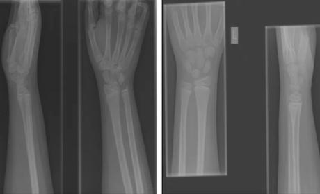 Robots podrían analizar imágenes radiológicas