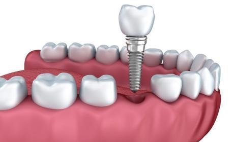 Nuevo revestimiento de implantes dentales combate infecciones
