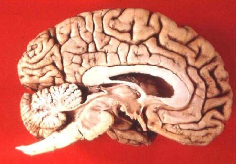 Vista lateral del cerebro