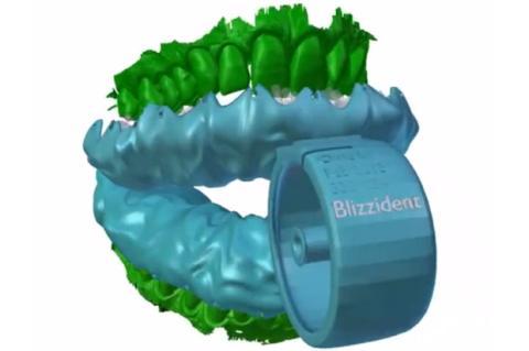 Bizzident, el cepillo de dientes hecho a tu medida