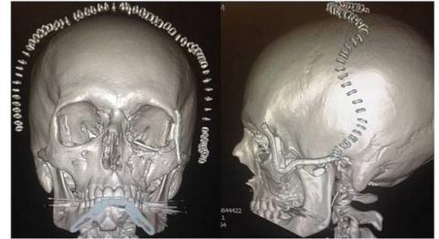 Impresora 3D para imprimir implantes de titanio en huesos de cara
