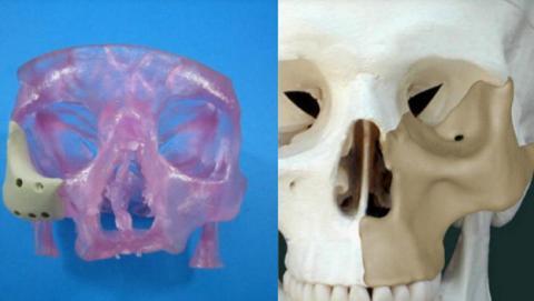 implante facial 3d