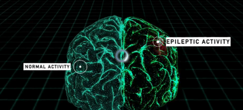 modelo 3d cerebro