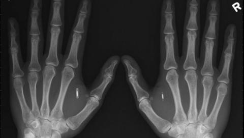 Se implanta un chip en la mano para fichar en su empresa