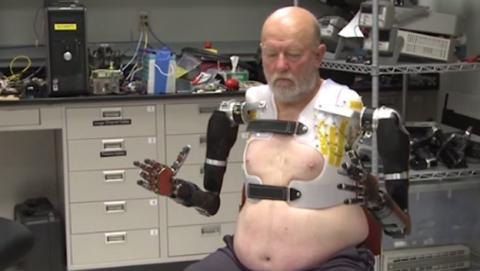 hombre dos prótesis