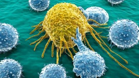La cura del cáncer, más cerca: investigadores convierten células cancerígenas en glóbulos blancos inofensivos, que se transforman en macrófagos.
