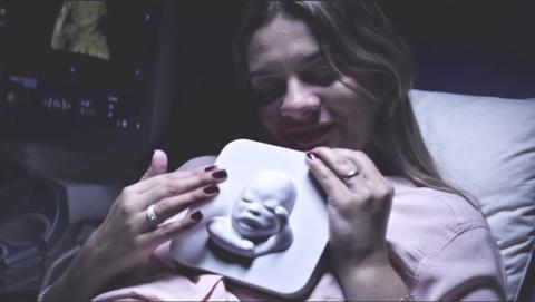 Una embarazada ciega ve a su hijo gracias a la impresión 3D