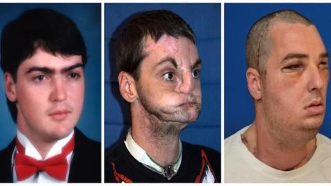 Richard Norris recibió transplantada la cara de Joshua Aversano en 2012