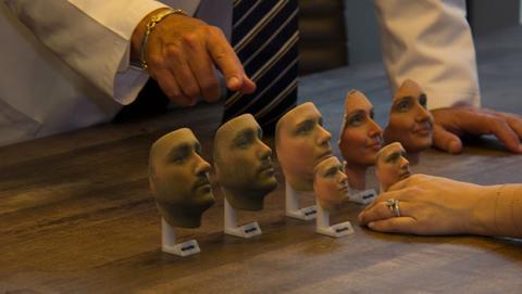 Modelo 3D muestra a los pacientes el resultado de la cirugía