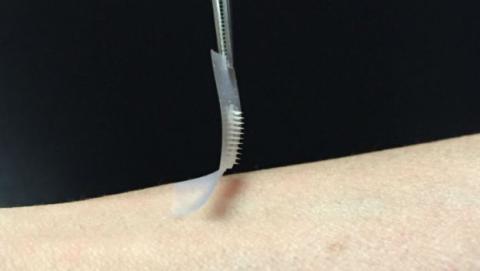 El parche inteligente para controlar la insulina