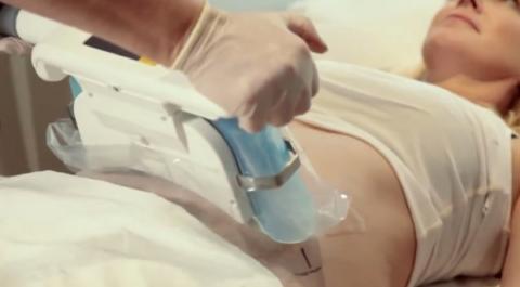 CoolSculpting técnicas adelgazar
