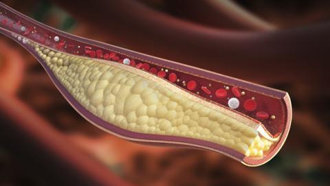 Desarrollan microrrobots para limpiar arterias obstruidas