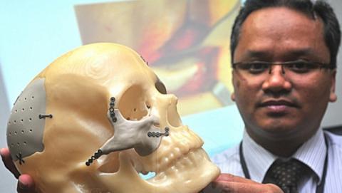 Un implante impreso en 3D reconstruye la cara de una mujer