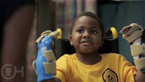 Zion Harvey, el primer niño del mundo en recibir un trasplante de manos