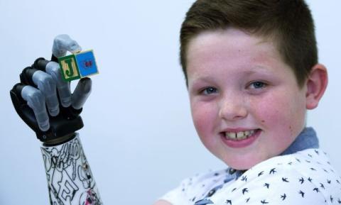 Niño de 9 años, el paciente más joven con una mano biónica