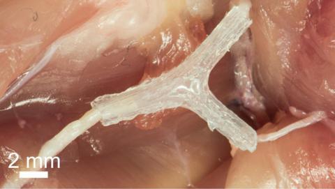 Prótesis impresas en 3D ayudan a regenerar los nervios