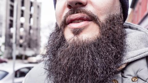 La moda de los implantes de barba llega a España