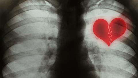 Sindrome del corazón roto o takotsubo cardiomiopatía