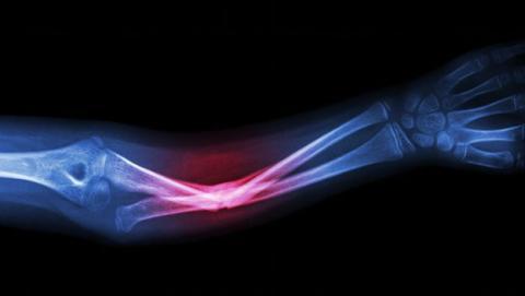 Sistema para que los huesos se regeneren