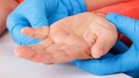 Una app para el smartphone ayuda a detectar el Parkinson