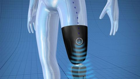 protesis bionica