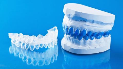 bracets ortodoncia impresora 3d