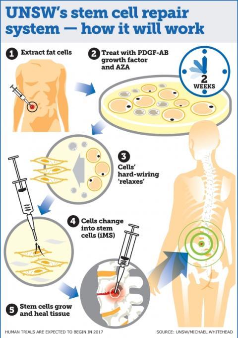 Sistema de regeneración de tejidos