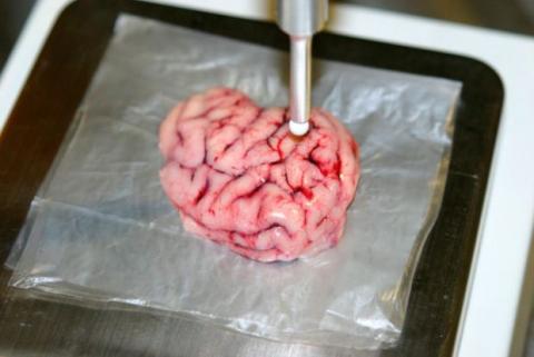 Este bisturí localiza los tumores cerebrales