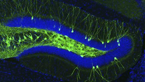 Consiguen curar los síntomas del alzheimer en ratones