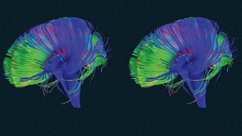 Cómo funcionan las conexiones sinápticas del cerebro