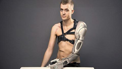 Las prótesis futuristas de James Young