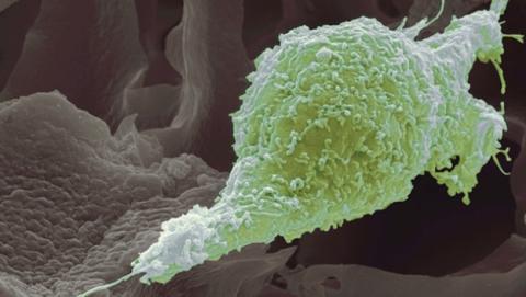 Imagen de un tumor y de las células cancerosas