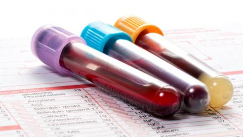 analisis sangre depresion