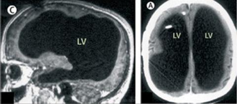 Escáner de un cebreo dañado por la hidrocefalia