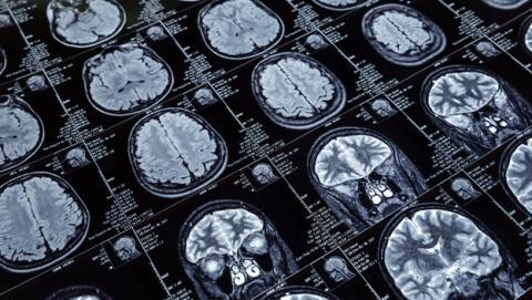 Un hombre que perdió el 90% del cerebro desafía a la ciencia