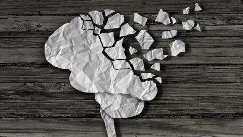 El Alzheimer podría afectar al desarrollo del cerebro