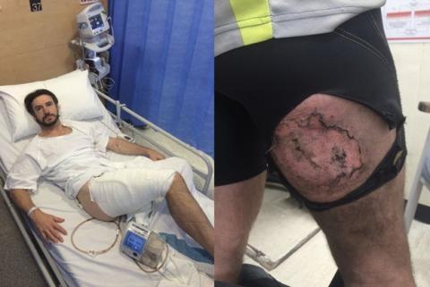 Quemaduras de tercer grado tras cirugía de injeros de piel