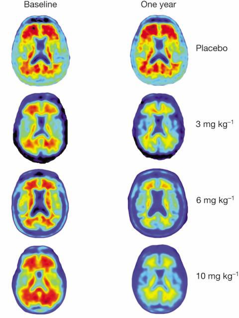 Reducción de placas de beta amiloide