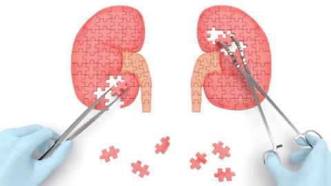 trasplante de riñon
