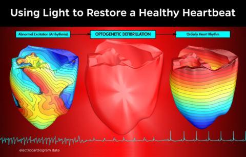 Nuevo defibrilador utilizaría rayos de luz