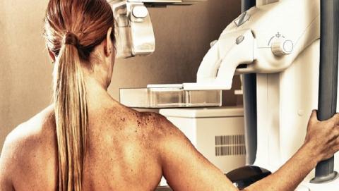 Nuevo software ayuda a predecir riesgo cáncer de mama