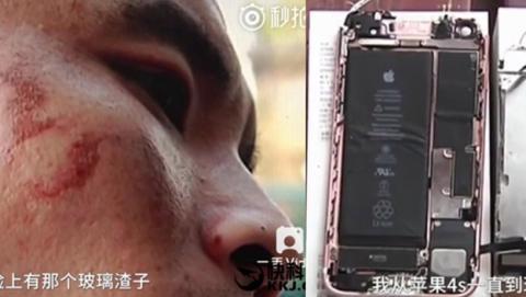 Un iPhone 7 le explota en la cara mientras grababa un vídeo