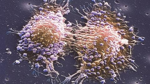 Terapia de luz trata con eficacia el cáncer de próstata temprano