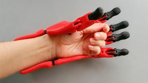Prótesis impresas en 3D, un rayo de esperanza para África